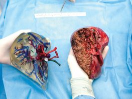 εικόνα εκτυπωμένου (τρισδιάστατου) ήπατος και του αντίστοιχου από ασθενή.